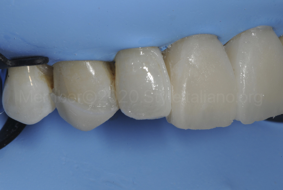 lateral incisor and canine being covered with composite