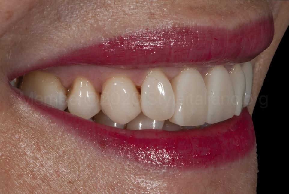 new satisfied smile after dental restorations