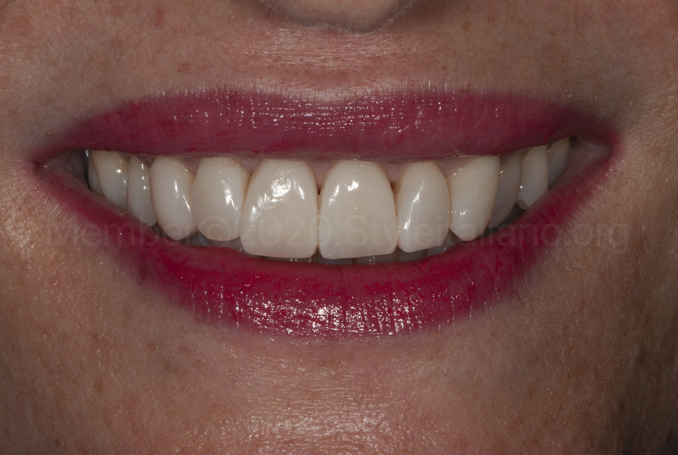 happy patient after smile makeover