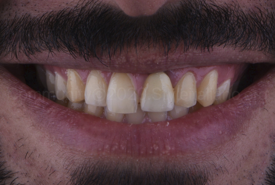 smile with yellow teeth and old crown restoration