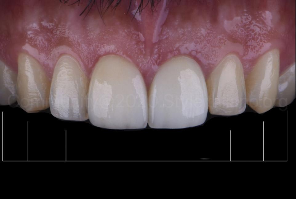 non-restored teeth needing whitening