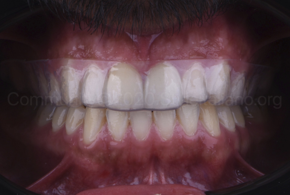 adapted dental bleaching tray for upper arch