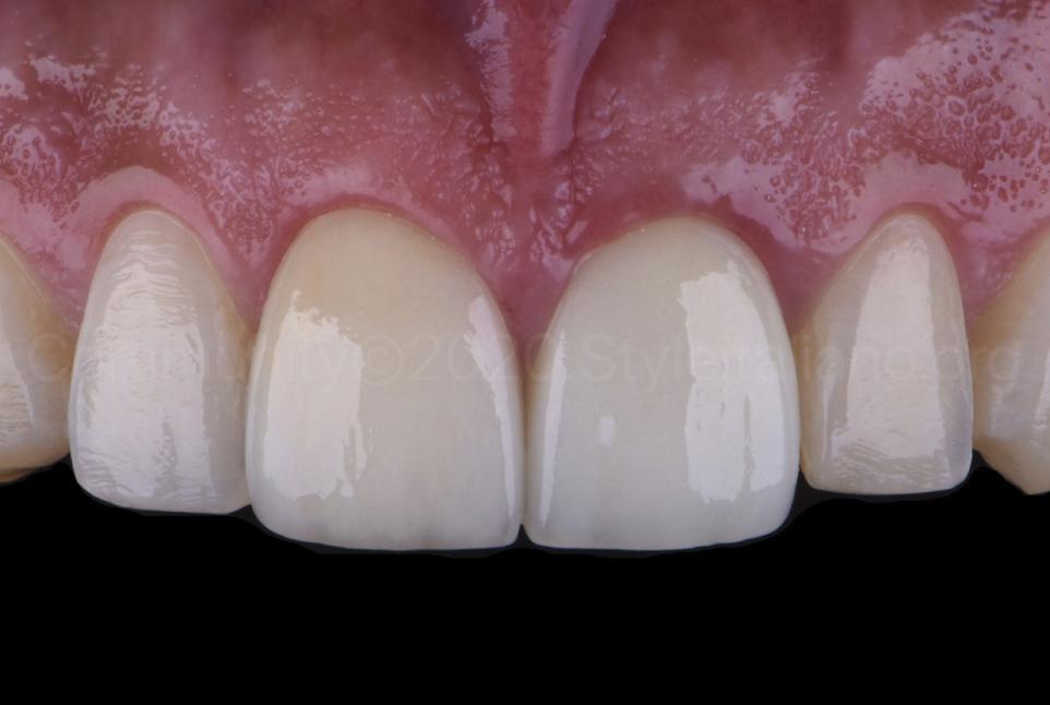 bleached teeth after two weeks