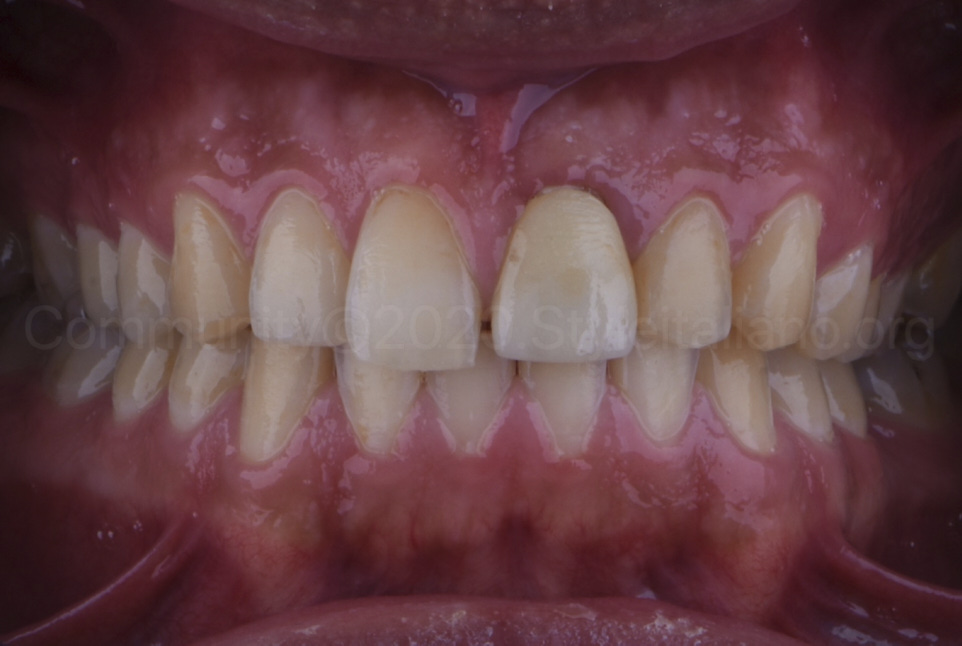 intraoral picture of mouth to be restored