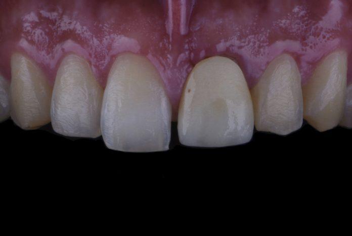 old crown on upper left incisor