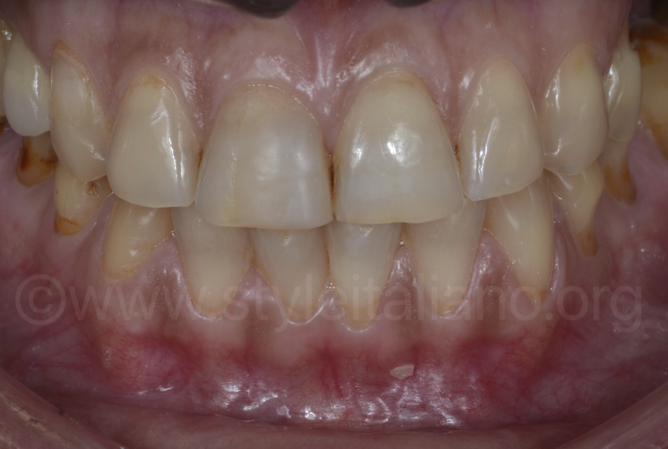 teeth with severe erosion