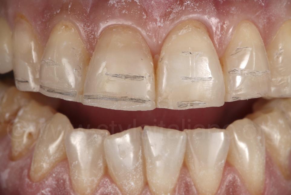 minimally invasive preparation for dental veneers