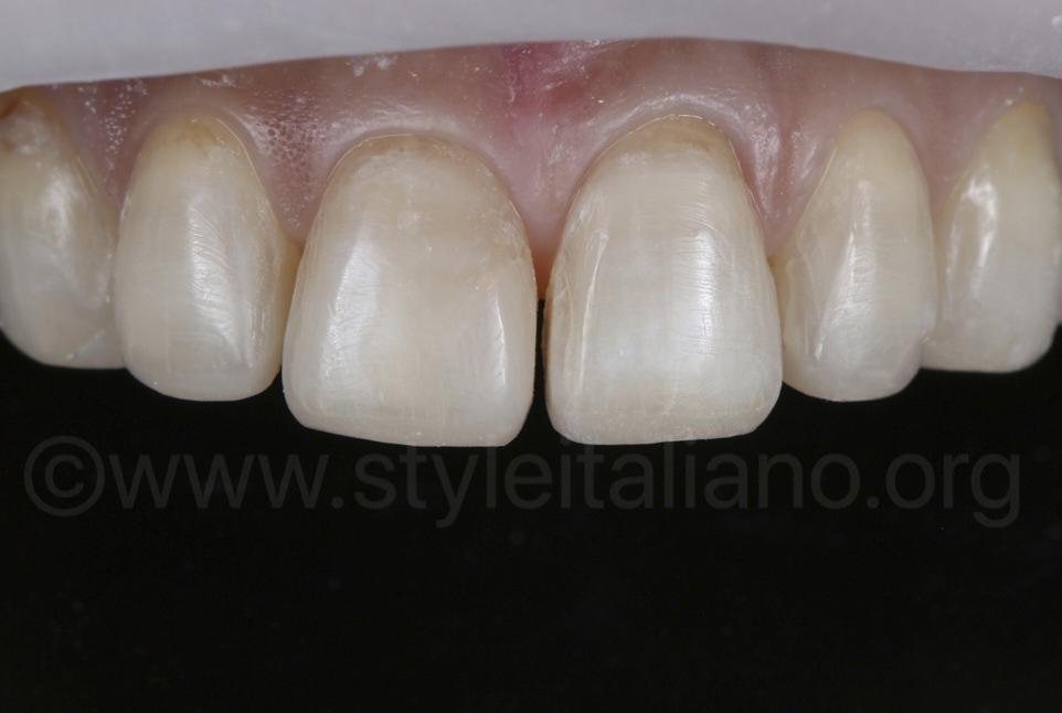 upper teeth prepared for veneer restoration