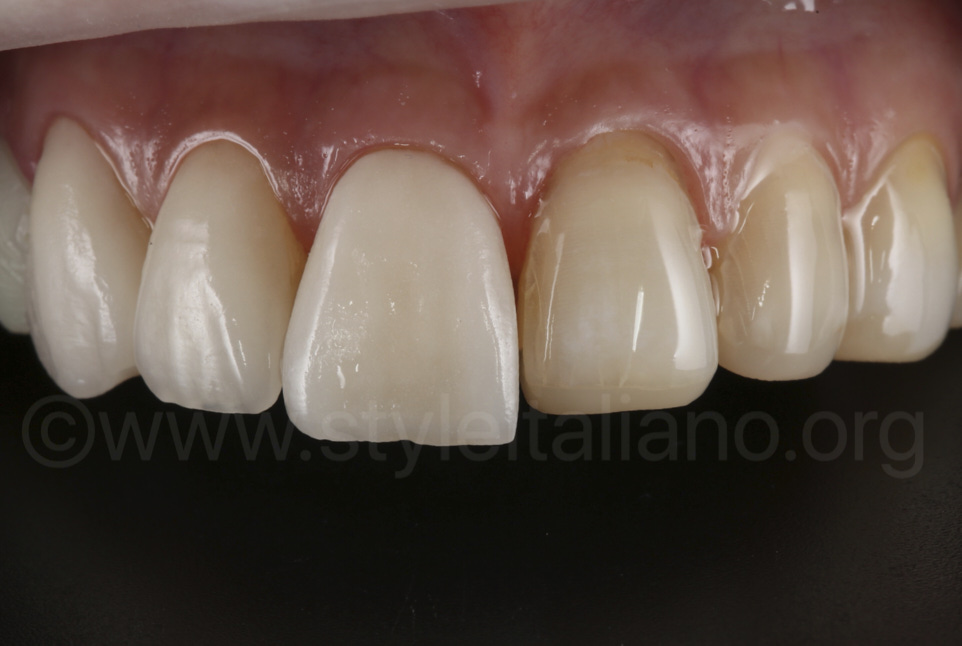 try in of veneers on upper right incisors