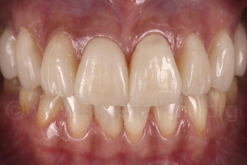 ceramic veneers on upper teeth