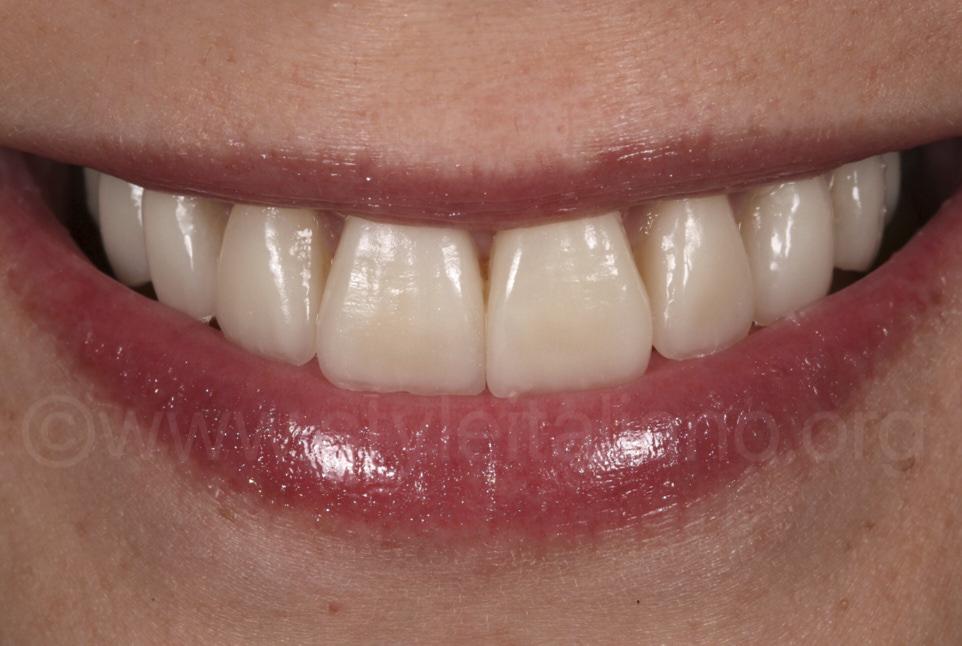 woman satisfied with ceramic dental veneers