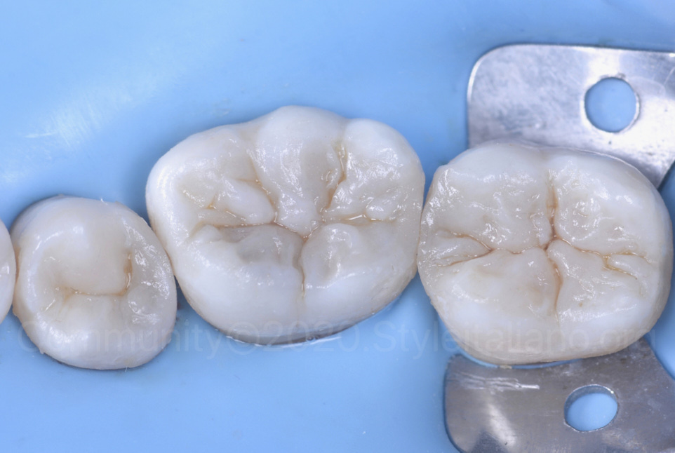 composite restorations with beautiful characterisation of sulk