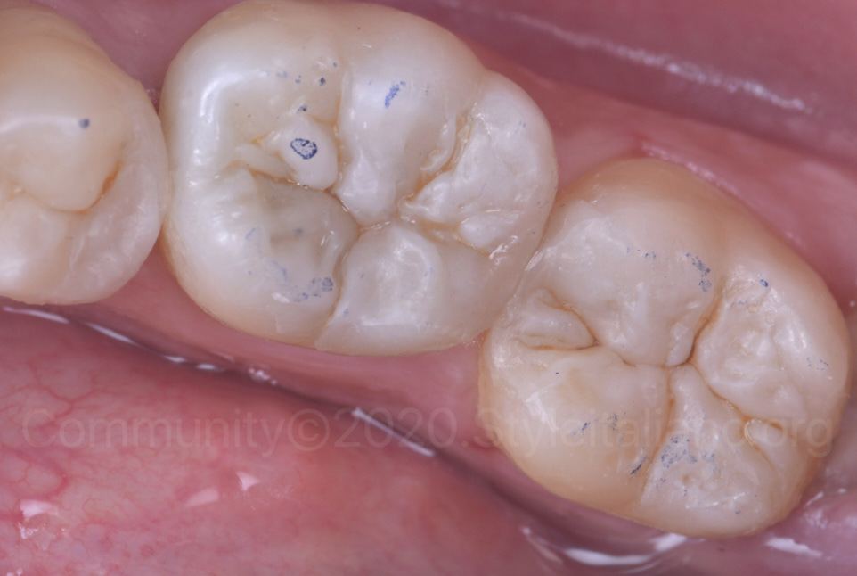 occlusal check of composite restorations