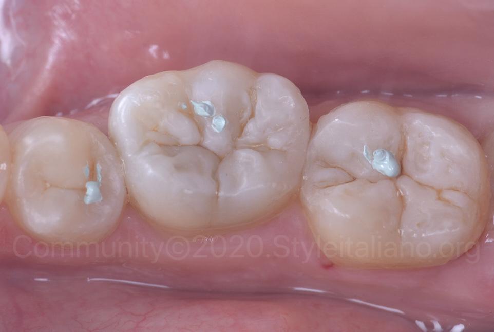 polishing lucida paste on posterior teeth