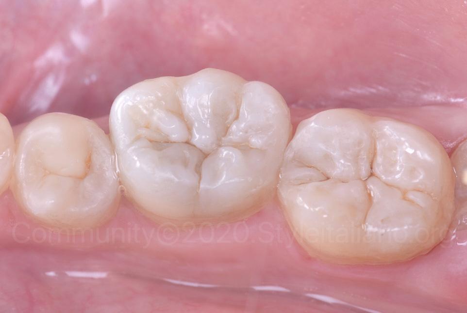 polished composite restorations on lower molars and premolar
