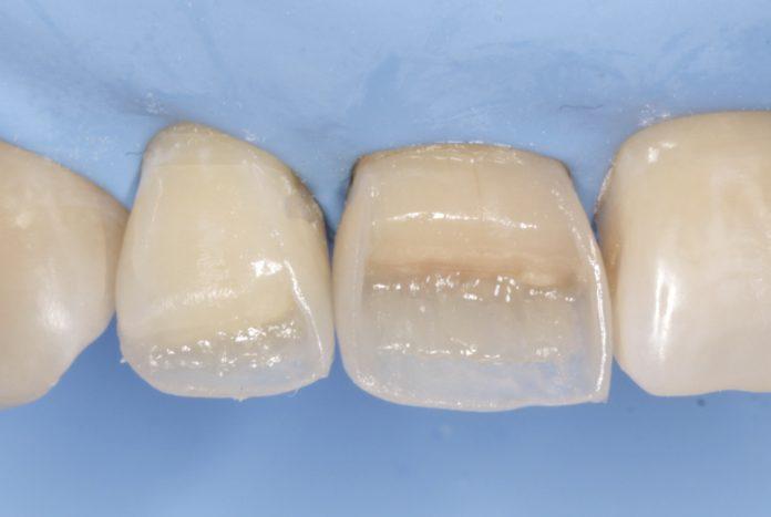 composite direct restoration of incisors
