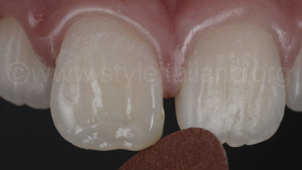 pop on abrasive disc for shaping of incisor