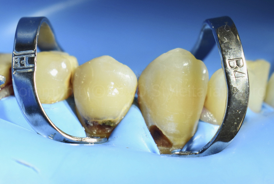 cervical carious lesions on lower canine and premolar