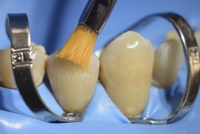 brush for class V composite restoration