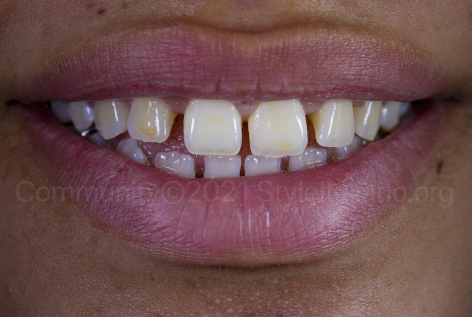 multiple diastemas and stains on upper teeth