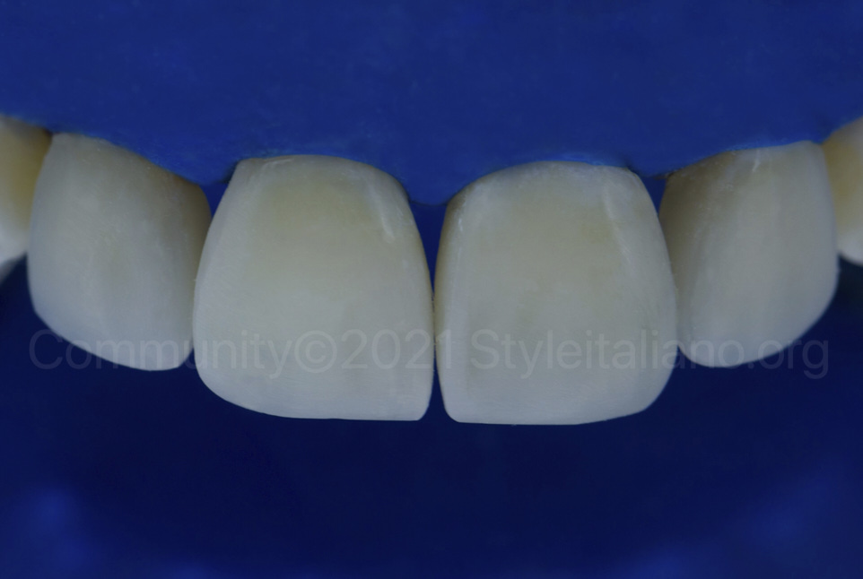 final result of incisor reshaping with composite veneers