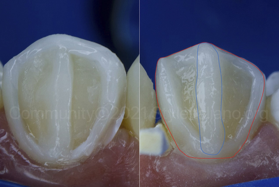 design of canine buccal build-up
