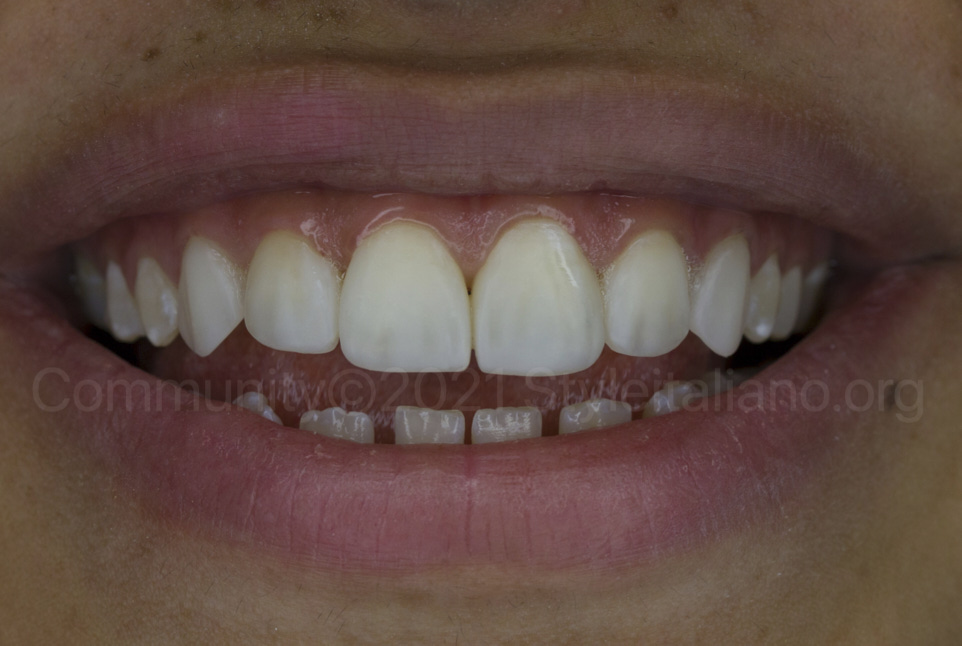 restored smile with composite direct veneers