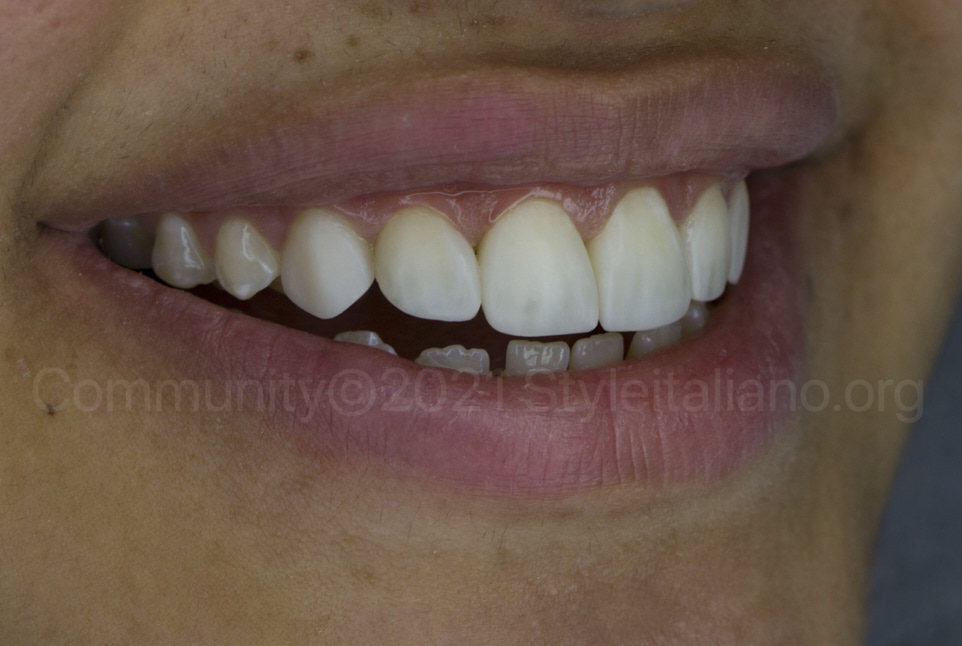 happy woman after non-ivasive dental veneers