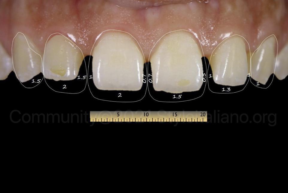digital measurements for smille design