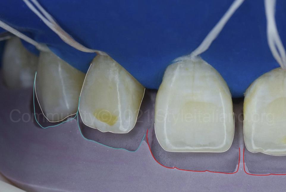 silicone index for direct composite restoration