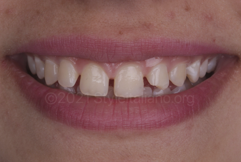 smile with multiple diastemata