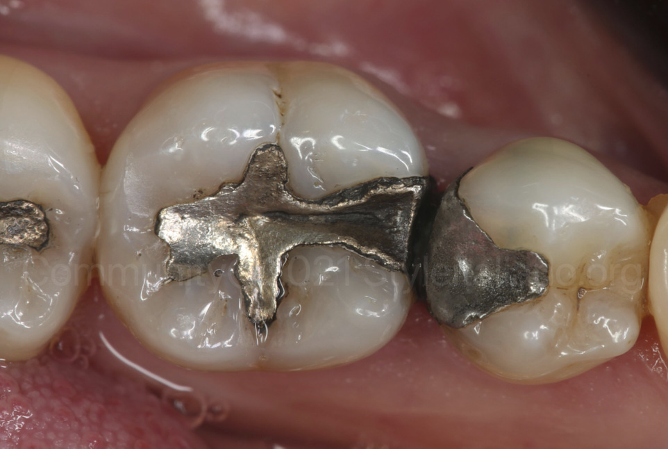 old defective amalgam restorations