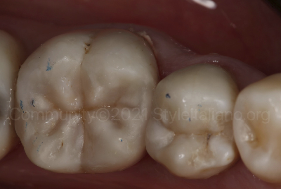 final result and occlusal check of composite class 2 restorations