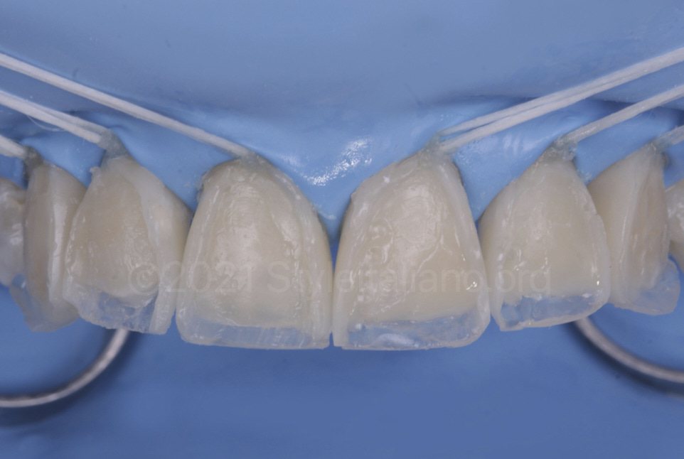 outer shape of direct veneers defined