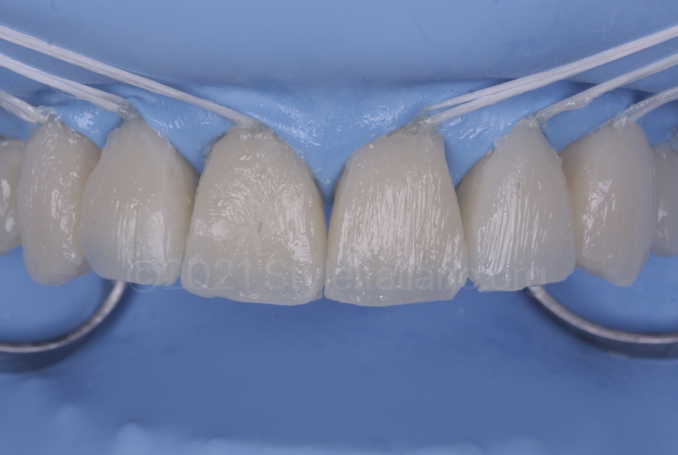 raw composite layered on front teeth