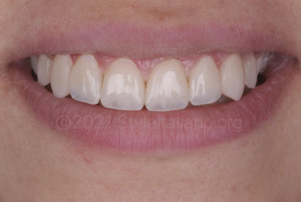 polished composite veneers on upper front teeth