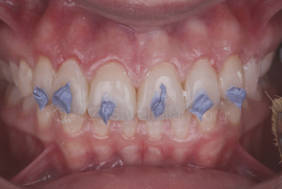 diamond paste for composite polishing