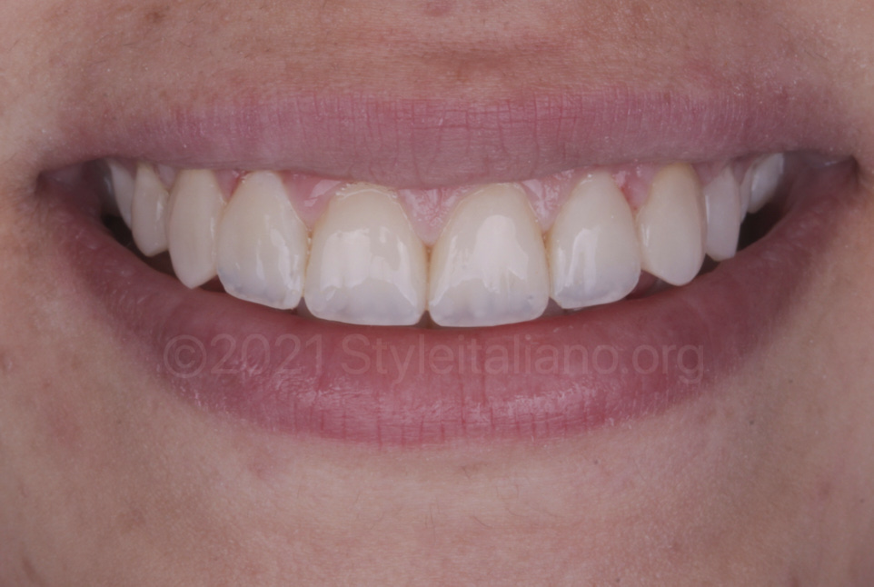 smile after teeth makeover with direct composite makeovers