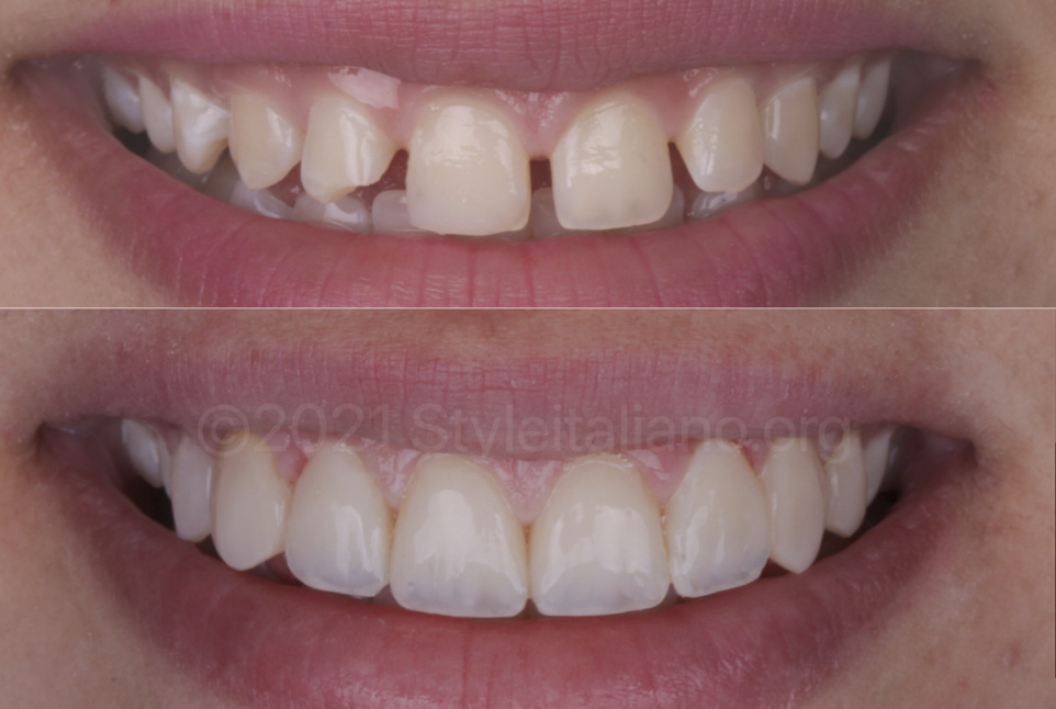 before and after diastema closure