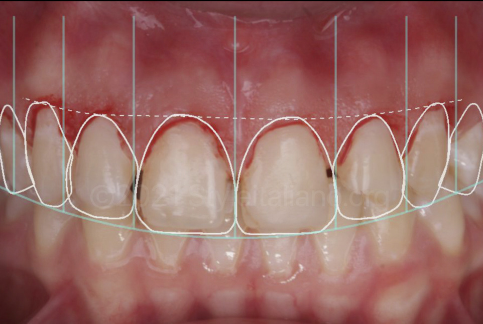 superimposition of gingivectomy and esthetic restoration project