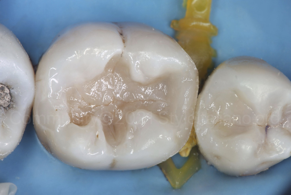 layering raw composite in the posterior cavities