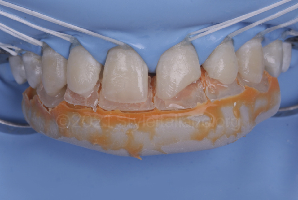 palatal shells layered with the help of a silicone index