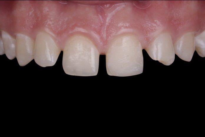 multiple diastemas in the upper arch