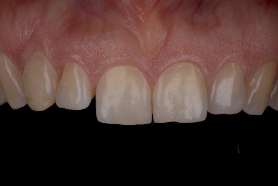 tipped lateral incisor