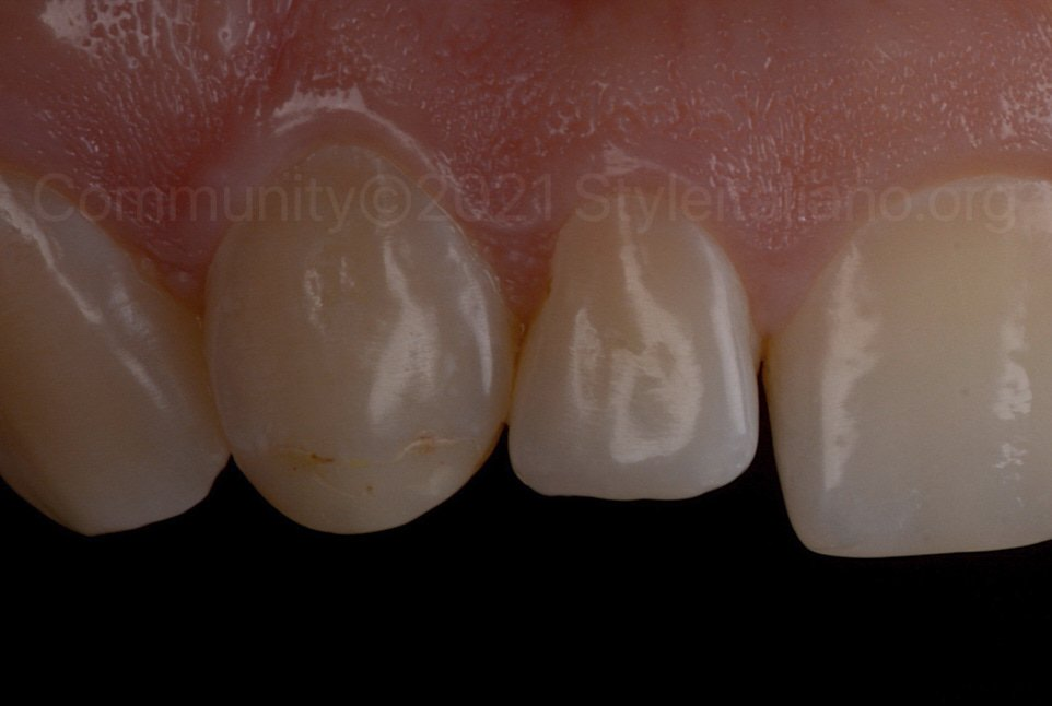 picture of upper lateral incisor