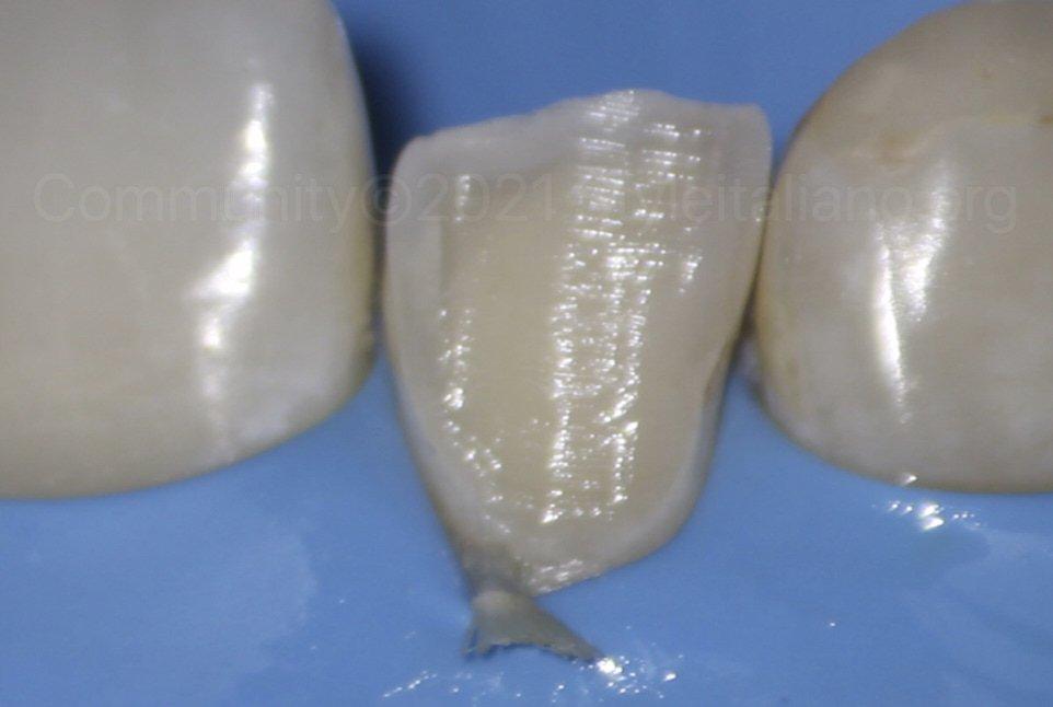 buccal enamel preparation for direct veneer