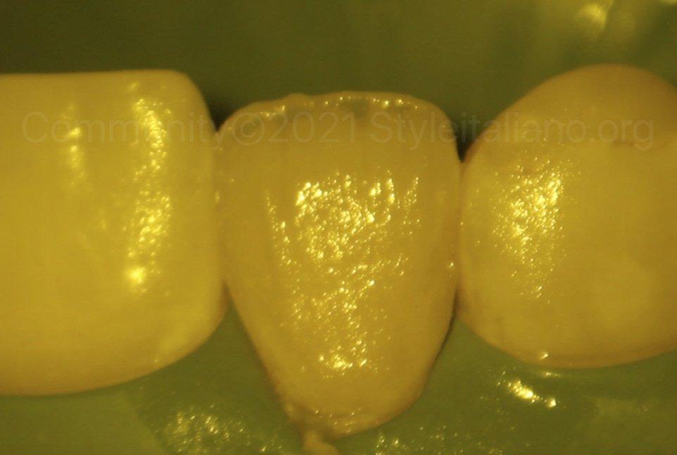 raw composite dentin layering