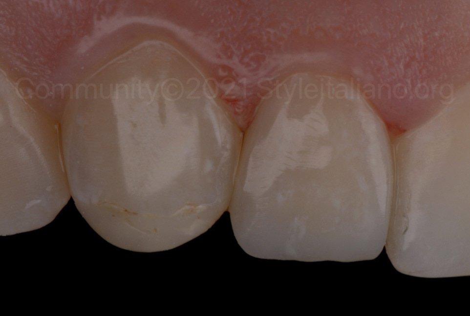 polished veneer on lateral incisor