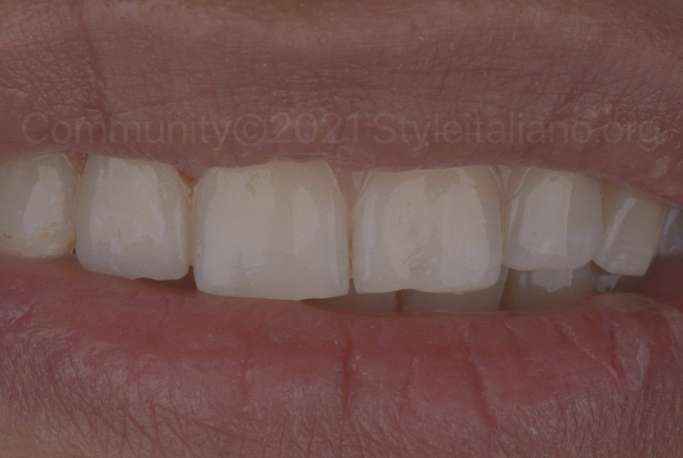 final smile with single tooth restoration