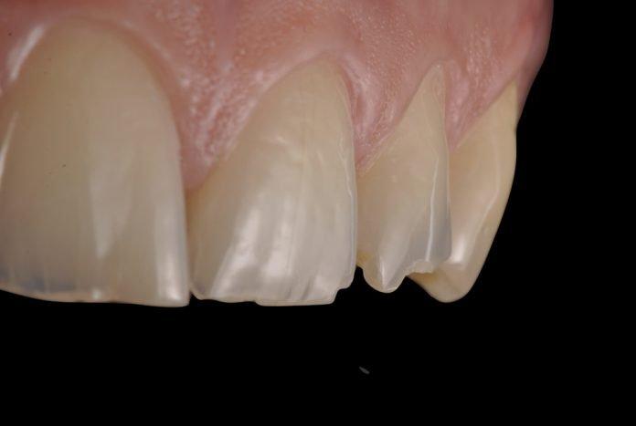 Treating worn dentition full mock up digital approach style italiano styleitaliano